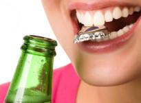 Появление трещин на зубах: в чем причина и как их устранить