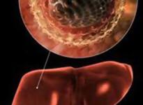 Как можно заразиться гепатитом С при беременности