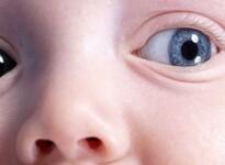 Из-за чего у некоторых малышей разные зрачки?