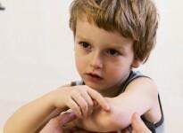 Мази от синяков и ушибов для детей