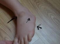 Из-за чего появляются шишки на ногах у ребенка