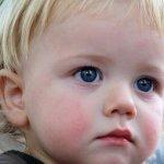 Сухой диатез у ребенка