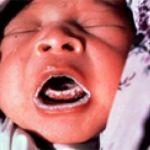 Фото: атрофический кандидоз у ребенка