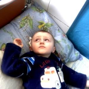 Симптомы кисты головного мозга у ребенка