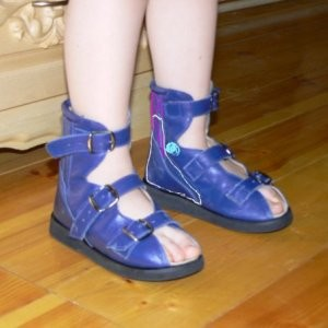 Обувь при плоско вальгусной стопе