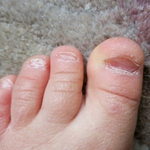 Способы исправления вогнутых ногтей