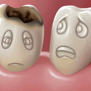 Кариес зубов у ребенка 2 года