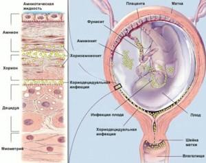 Микоплазмоз при беременности последствия для ребенка