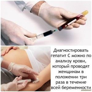 Во время беременности гепатит с