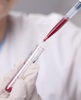 агретация тромбоцитов у беременных