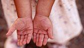 у ребенка облазит кожа на ладошках