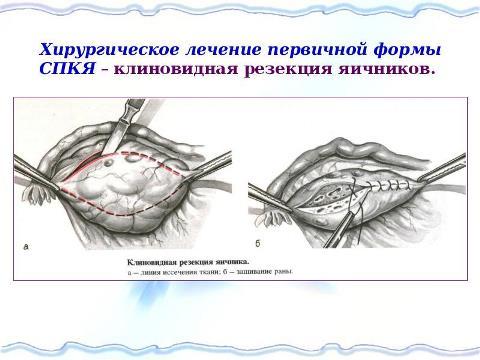 беременность при поликистозе