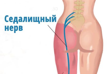 Воспаление седалищного нерва при беременности лечение